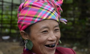 Teeth Blackening Tradition North Vietnam